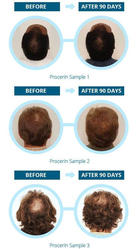 Procerin Results