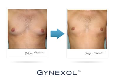 Gynexol Before and After