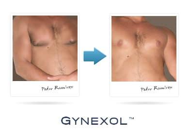 Gynexol Results