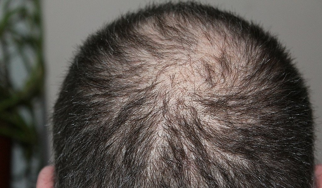 Stem Cell Cure for Baldness