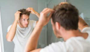 Losing Hair at 25? Here's What You Can Do About It