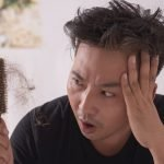 The Causes of Hair Loss in Men