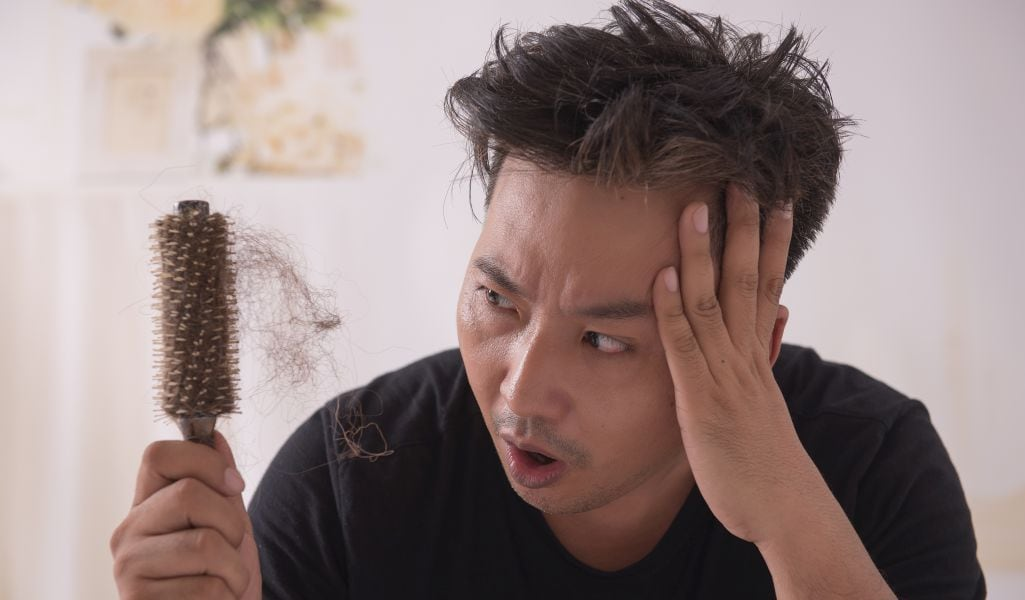 Asian man holding comb with clumps of hair